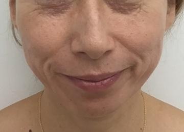 東郷美容形成外科福岡のシワ・たるみ(照射系リフトアップ治療)の症例写真[ビフォー]