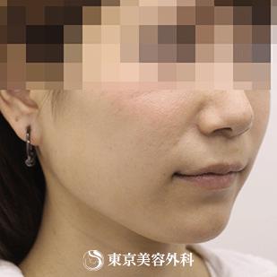 東京美容外科の顔の整形(輪郭・顎の整形)の症例写真[アフター]