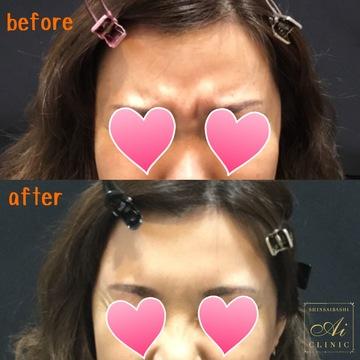 心斎橋Aiクリニック (心斎橋アイクリニック)の顔のしわ・たるみの整形(リフトアップ手術)の症例写真