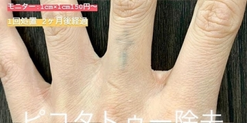 ルラ美容クリニック 高田馬場院のタトゥー除去(刺青・入れ墨を消す治療)の症例写真[ビフォー]