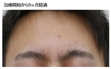 ピーリング・内服薬によるニキビ治療の症例写真[アフター]