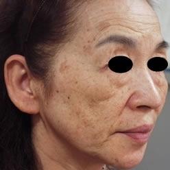 共立美容外科・歯科のシミ治療(シミ取り)・肝斑・毛穴治療の症例写真[ビフォー]