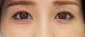 湘南美容クリニック 武蔵小杉院の目・二重の整形の症例写真[アフター]