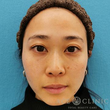 エースクリニックの顔のしわ・たるみの整形(リフトアップ手術)の症例写真[アフター]