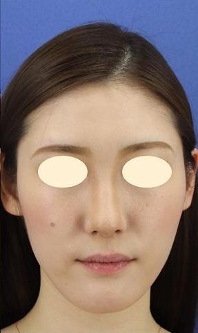 銀座長瀬クリニックの脂肪吸引の症例写真[アフター]