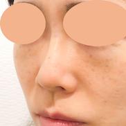 A CLINIC YOKOHAMA(エークリニックヨコハマ)の症例写真[アフター]