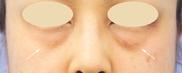 湘南美容クリニック武蔵小杉院の目元の整形、くま治療の症例写真[ビフォー]