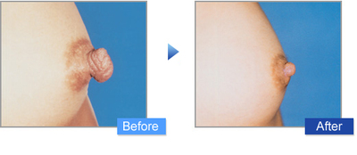コムロ式乳頭縮小術の症例写真