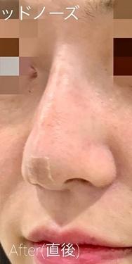 ルラ美容クリニック高田馬場院の鼻の整形の症例写真[アフター]