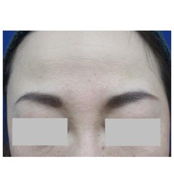 新宿ビューティークリニックの顔のしわ・たるみの整形(リフトアップ手術)の症例写真[アフター]