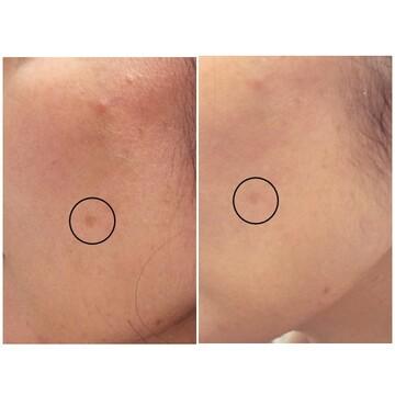 のシミ治療(シミ取り)・肝斑・毛穴治療の症例写真