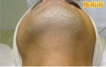 表参道スキンクリニック福岡院(旧NAOクリニック)の医療レーザー脱毛の症例写真[ビフォー]