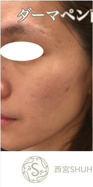 西宮SHUHEI美容クリニックのニキビ治療・ニキビ跡の治療の症例写真[ビフォー]