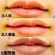 東京八丁堀皮膚科・形成外科の口もと、唇の整形の症例写真