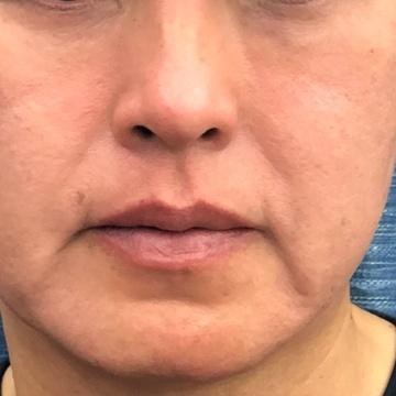 あらなみクリニックの顔のしわ・たるみの整形(リフトアップ手術)の症例写真[ビフォー]