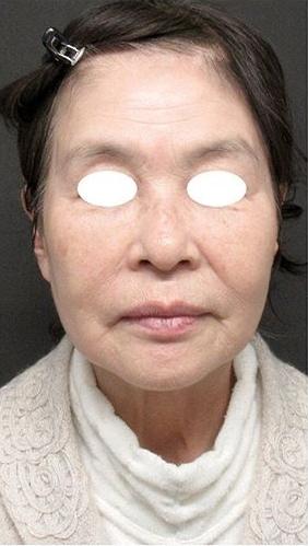 ジョウクリニックの顔のしわ・たるみの整形の症例写真[ビフォー]