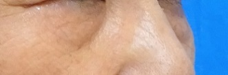 目の下のふくらみ取り(脂肪取り)パーフェクトの症例写真[ビフォー]