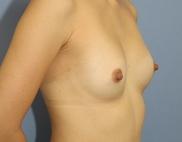 の豊胸手術(胸の整形)の症例写真[アフター]