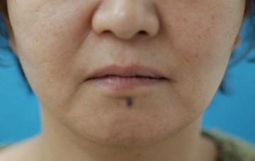 みずほクリニックのシワ・たるみ(照射系リフトアップ治療)の症例写真[ビフォー]