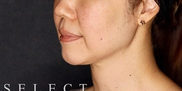 SELECT CLINIC (セレクトクリニック)の顔の整形(輪郭・顎の整形)の症例写真[ビフォー]