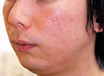 千葉中央美容形成クリニックのニキビ治療・ニキビ跡の治療の症例写真[アフター]