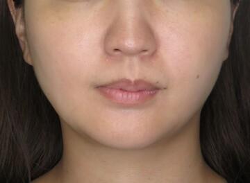 東京美容外科 仙台院の顔のしわ・たるみの整形の症例写真[ビフォー]