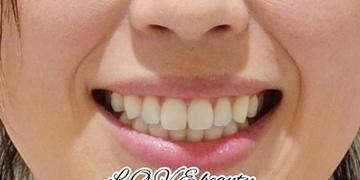 の口もと、唇の整形の症例写真[ビフォー]