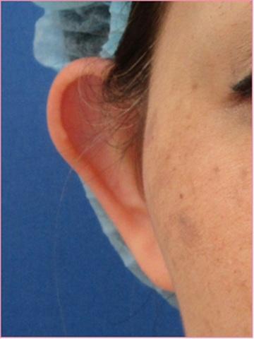 城本クリニックの耳の整形の症例写真[ビフォー]