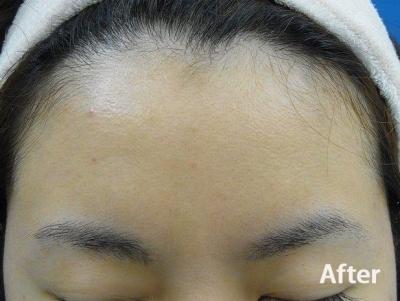 額のニキビ・ニキビ跡の治療の症例写真[アフター]