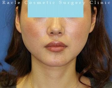 新宿ラクル美容外科クリニックの顔の整形(輪郭・顎の整形)の症例写真[ビフォー]