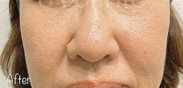 81clinicのホクロ除去・あざ治療・イボ治療の症例写真[アフター]