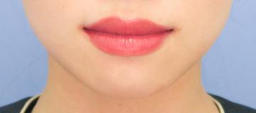 湘南美容クリニック 武蔵小杉院の口元・唇の整形の症例写真[ビフォー]
