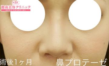 湘南美容クリニック姫路院の鼻の整形の症例写真[アフター]