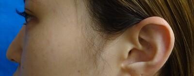 クレヴィエル 鼻 ヒアルロン酸の症例写真[ビフォー]