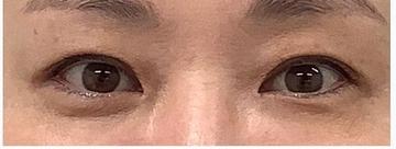 銀座長瀬クリニック 大阪院の目・二重整形の症例写真[ビフォー]
