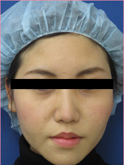 ■隆鼻術+鼻中隔延長+耳介軟骨移植の症例写真[アフター]