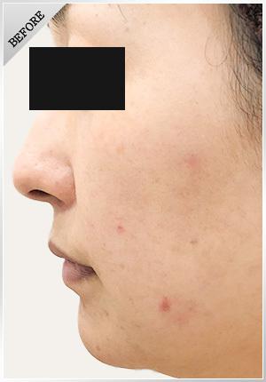 銀座肌クリニックのシミ取り・肝斑・毛穴治療の症例写真[ビフォー]