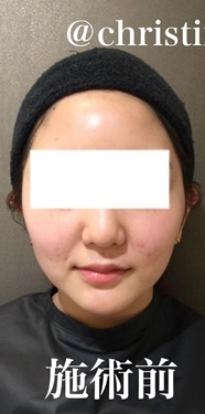 CHRISTINA clinic GINZA(クリスティーナクリニック銀座)のシワ・たるみ(照射系リフトアップ治療)の症例写真[ビフォー]