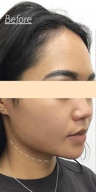 東京ゼロクリニック銀座の顔のしわ・たるみの整形の症例写真[ビフォー]