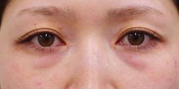 SELECT CLINIC(セレクトクリニック)の目元整形・クマ治療の症例写真[ビフォー]