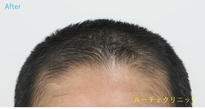 ARTAS(アルタス)9x植毛術の症例写真[アフター]
