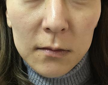 N クリニックの顔のしわ・たるみの整形(リフトアップ手術)の症例写真[ビフォー]