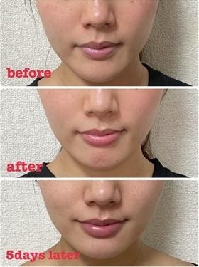 くみこクリニック 京都四条烏丸院の口元・唇の整形の症例写真