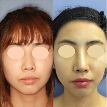 湘南美容クリニック 新宿本院の鼻の整形の症例写真