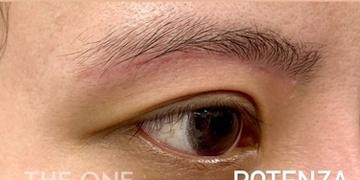 THE ONE.の傷跡治療、ケロイドの症例写真[ビフォー]