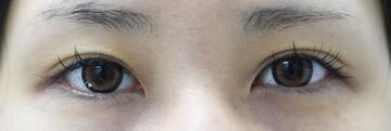 みずほクリニックの目・二重整形の症例写真[アフター]