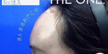 額ヒアルロン酸注入の症例写真[アフター]