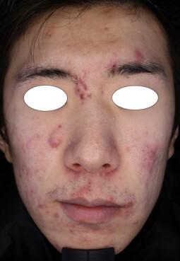 みらいビューティークリニック和歌山のニキビ治療・ニキビ跡の治療の症例写真[ビフォー]
