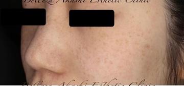ベレッサ明石美容クリニックのシミ取り・肝斑・毛穴治療の症例写真[ビフォー]