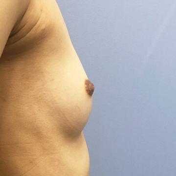 湘南美容クリニック 新潟院の豊胸・胸の整形の症例写真[ビフォー]